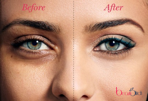 DIY Reduce Dark Circles Under Eyes