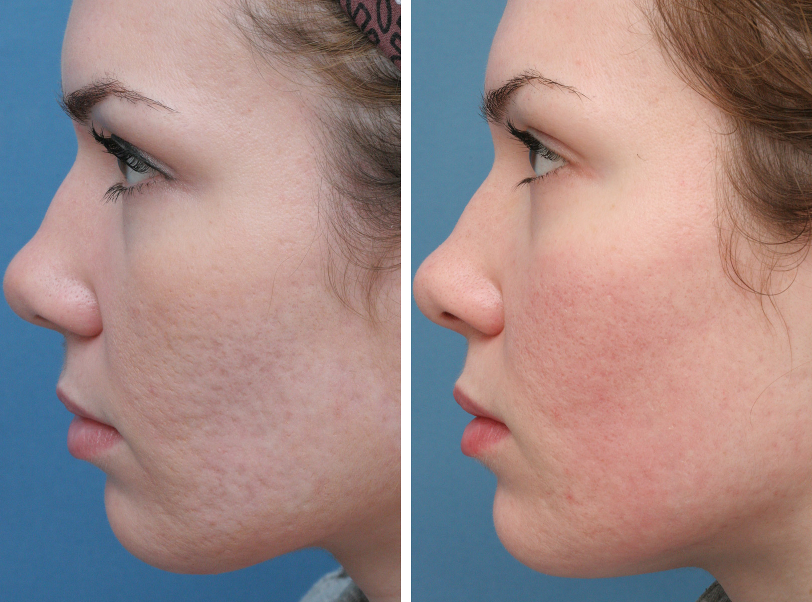 Best Acne Scar Treatements Revealed With Comparisons