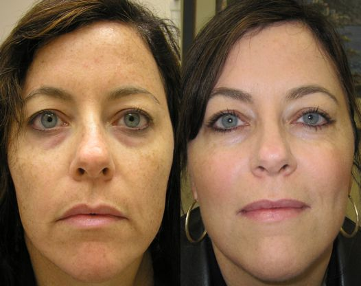 How To Fix Sagging Skin Around Mouth Best Infrared Red